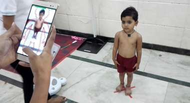 Child Growth Monitor: A Game-changing App to Detect Malnutrition